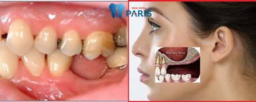 Tại sao bị mất răng cấm và cách trồng trăng cấm hiệu quả nhất là gì? 1