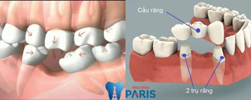 Tại sao bị mất răng cấm và cách trồng trăng cấm hiệu quả nhất là gì? 2