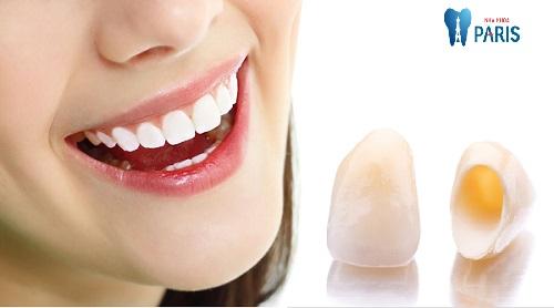 Trồng răng sứ không kim loại - Phục hình răng mất bền chắc Vĩnh Viễn 1