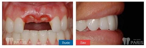Mất 2 răng liền kề có thể trồng lại được nếu không phải vị trí răng số 7