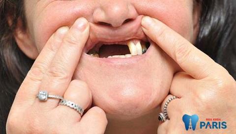 Mất nhiều răng không nên làm cầu răng sứ