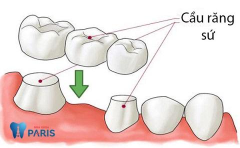 Cầu răng sứ có tốt không - Thắc mắc lớn của khách hàng
