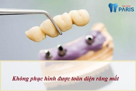 Cầu răng sứ không thể phục hình toàn diện cả thân và chân răng mất