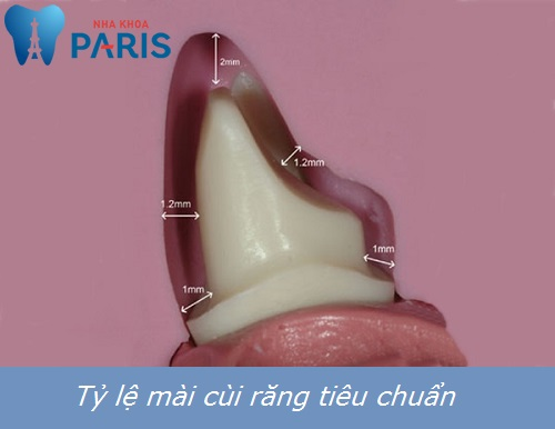 4 tiêu chí đánh giá kỹ thuật mài cùi răng sứ đẹp và CHUẨN nhất 1