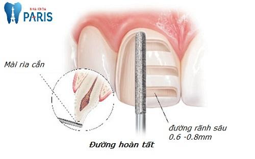 mài răng có hại không