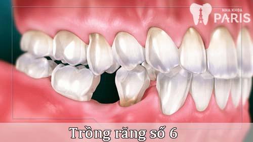 Bảng giả trồng răng số 6 Chuẩn & Chính xác nhất