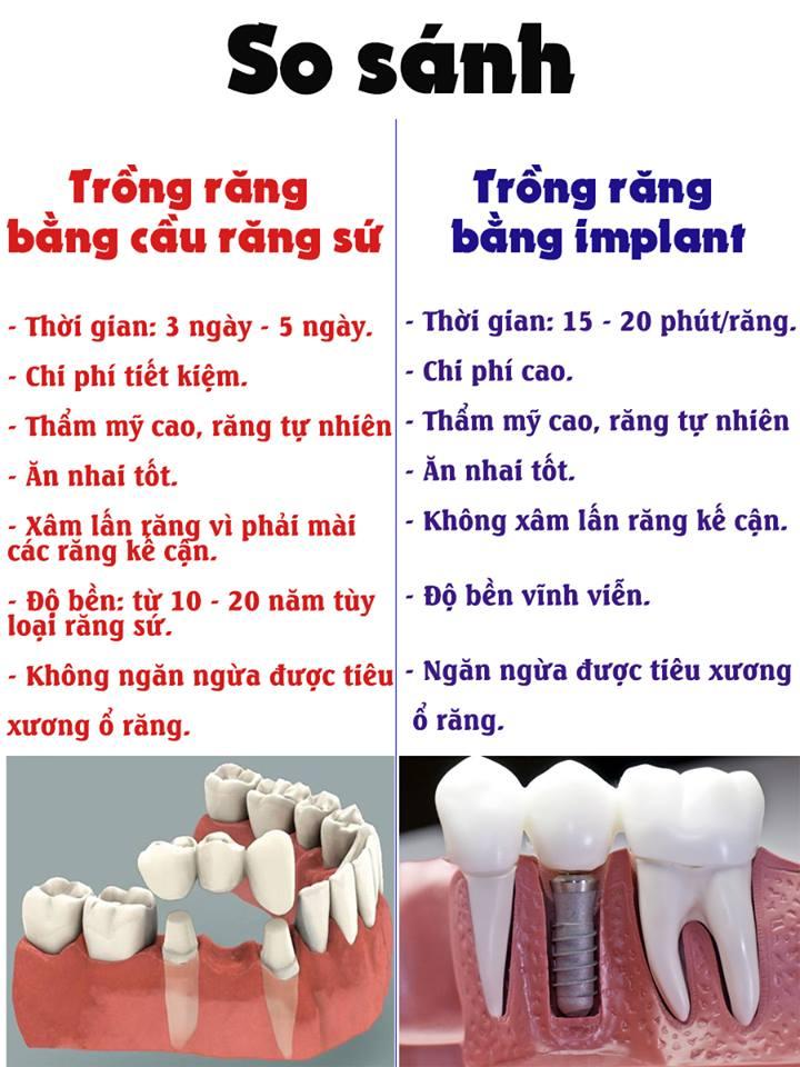 Trồng răng sứ là gì 1