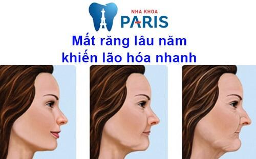 mất răng lâu năm gây lão hóa nhanh