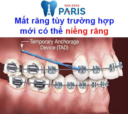 mất răng lâu năm có niềng được không