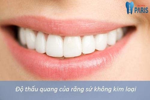 Trồng răng sứ không kim loại - Phục hình răng đẹp, bền chắc trên 25 năm