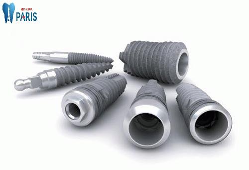 Kinh nghiệm làm răng implant chi tiết và đầy đủ nhất 3