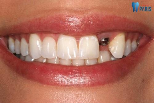 Kinh nghiệm làm răng implant chi tiết và đầy đủ nhất 2