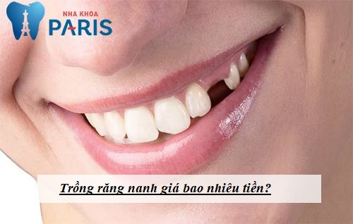Chi phí trồng răng nanh giá bao nhiêu tiền? [Bảng giá Mới nhất 2018] 1