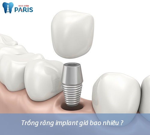 Chi phí trồng răng implant giá bao nhiêu tiền? [Bảng giá Mới 2018] 1