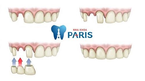 Mài răng có đau không khi trồng cầu răng sứ ?