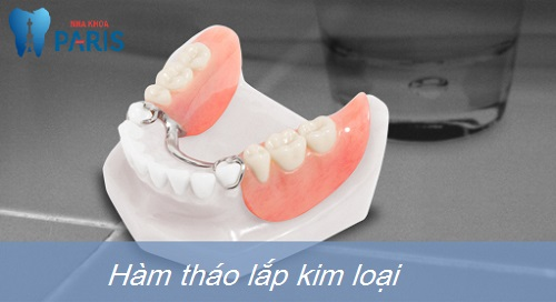 Hé lộ ưu điểm của các loại hàm răng giả tháo lắp TỐT nhất hiện nay 2