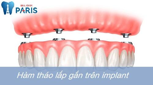 Hé lộ ưu điểm của các loại hàm răng giả tháo lắp TỐT nhất hiện nay 4
