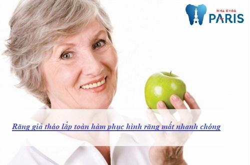 răng giả tháo lắp toàn hàm