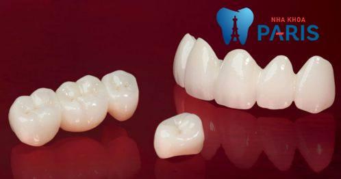 nên trồng răng giả loại nào tốt
