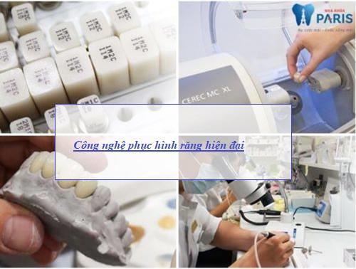 Truy tìm địa chỉ làm răng giả TỐT - UY TÍN nhất tại Hà Nội 2