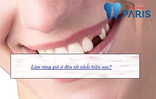 Truy tìm địa chỉ làm răng giả TỐT - UY TÍN nhất tại Hà Nội 1
