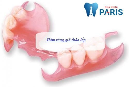 các kỹ thuật trồng răng giả nhanh, hiệu quả
