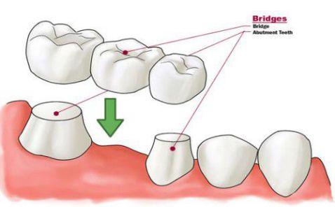 các kỹ thuật trồng răng giả nhanh, hiệu quả 1