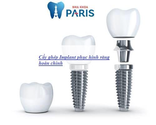 các kỹ thuật trồng răng giả nhanh, hiệu quả 12