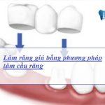 2 cách làm răng giả cố định Đẹp tự nhiên & Bền vĩnh viễn