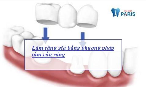 làm răng giả cố định phục hình răng1