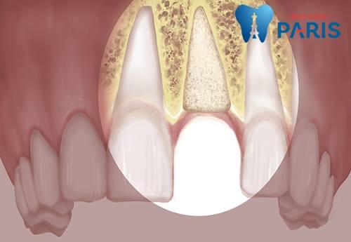 trồng 1 răng hàm giá bao nhiêu