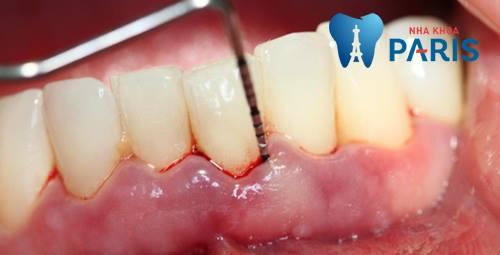 Viêm lợi răng lung lay: Nguyên nhân và cách điều trị dứt điểm 2