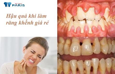 Làm răng khểnh nhân tạo giá rẻ có thể dẫn đến viêm nướu, sâu răng, ê buốt dữ dội.