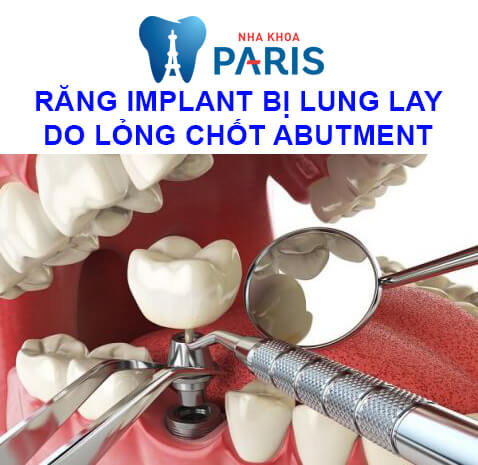 răng implant bị lung lay do lỏng abutment