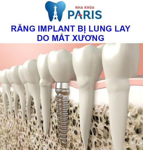 răng implant bị lung lay do mất nhiều xương