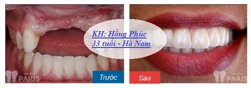 Chi phí trồng răng giả giá bao nhiêu tiền? [Bảng giá Mới nhất 2018] 11