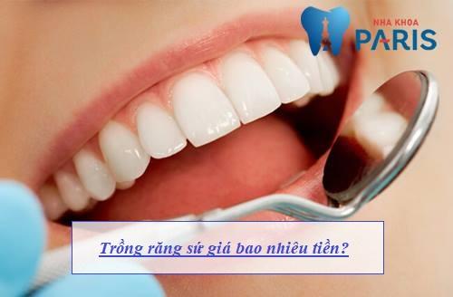 Chi phí trồng răng sứ giá bao nhiêu tiền? [Bảng giá CHUẨN 2018] 1