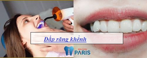 Làm sao để có răng khểnh mọc Duyên & Đẹp tự nhiên 2