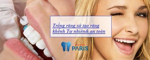 Làm sao để có răng khểnh mọc Duyên & Đẹp tự nhiên 3