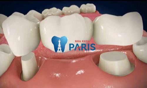 trồng răng cấm giá bao nhiêu tiền với từng phương pháp