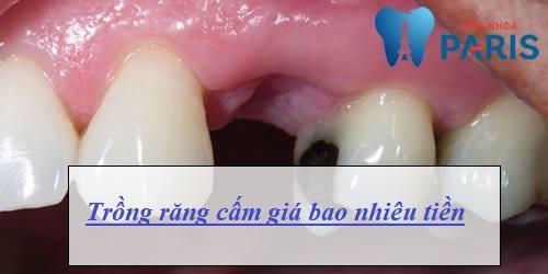 Chi phí trồng răng cấm giá bao nhiêu? [Bảng giá Mới nhất 2018] 1