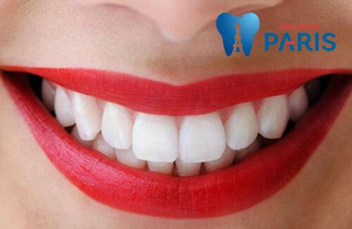 Làm răng giả ở đâu TỐT - UY TÍN - GIÁ HỢP LÝ NHẤT tại Hà Nội 1