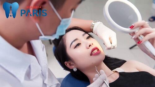 Làm răng giả ở đâu TỐT - UY TÍN - GIÁ HỢP LÝ NHẤT tại Hà Nội 3