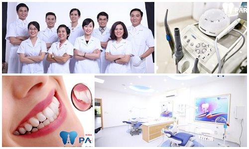 sưng tấy sau khi cấy ghép Implnt phục hình răng