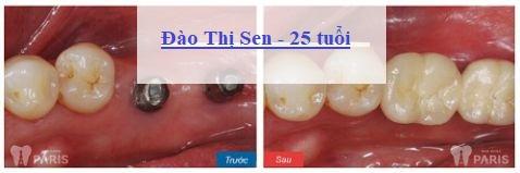 Trồng răng hàm dưới giá bao nhiêu tiền là rẻ12