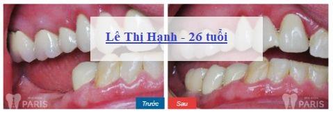 chi phí trồng răng hàm