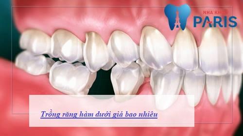 Trồng răng hàm dưới giá bao nhiêu tiền là rẻ