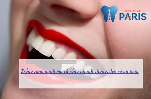 2 Phương pháp trồng răng nanh ma cà rồng được Ưa Chuộng Nhất 1