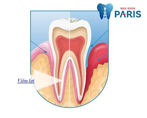 biến chứng sau khi bọc răng sứ