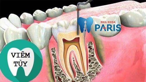 biến chứng của bọc răng sứ
